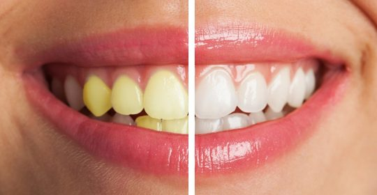 Reasons Your Teeth Are So Yellow