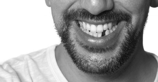 The Consequence of Missing Teeth